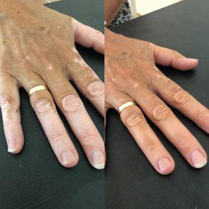 Camouflagetherapie DermaCentrum Apeldoorn