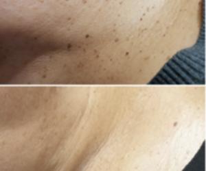 Coagulatietherapie bij huidoneffenheden