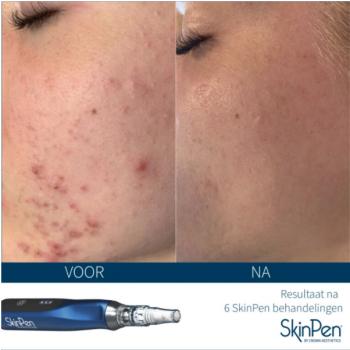 SkinPen behandeling acne littekens