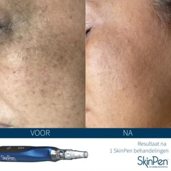 SkinPen behandeling pigment